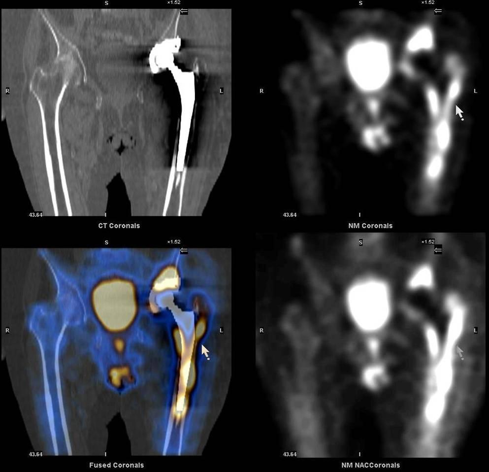 Кости ортопедия